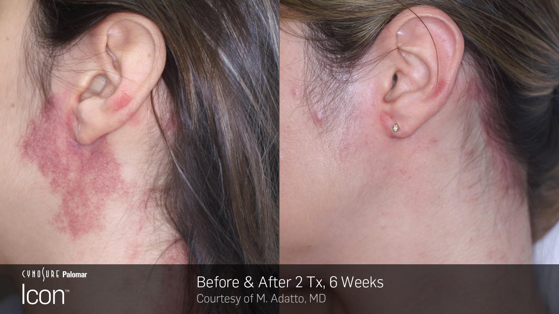 Laser Skin Rejuvenation before and after 4