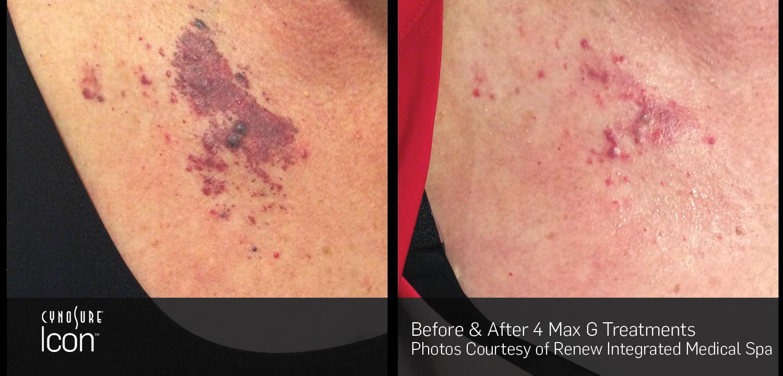 Laser Skin Rejuvenation before and after 3