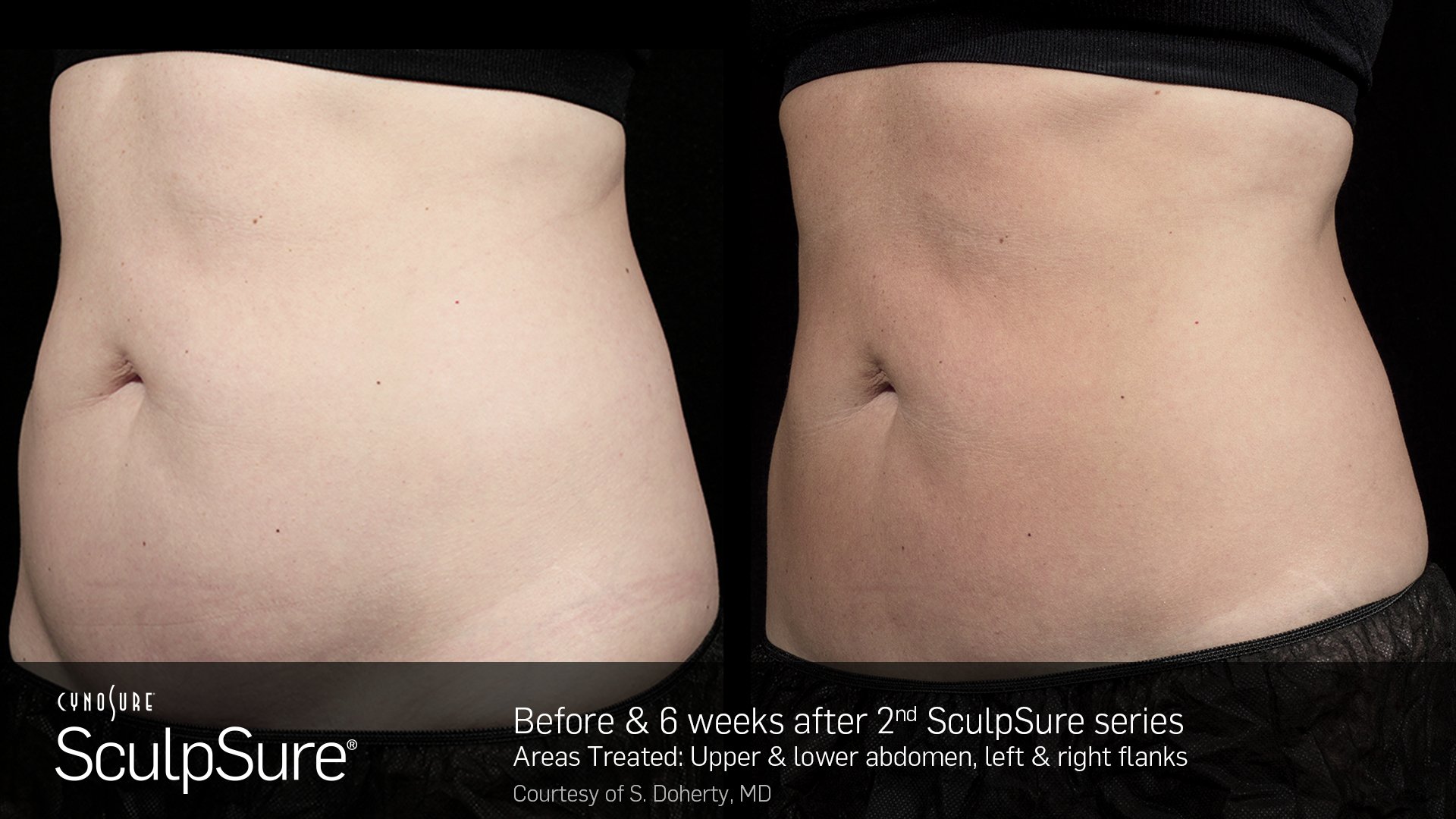 Sculpsure® Non-Invasive Body Contouring before and After #1