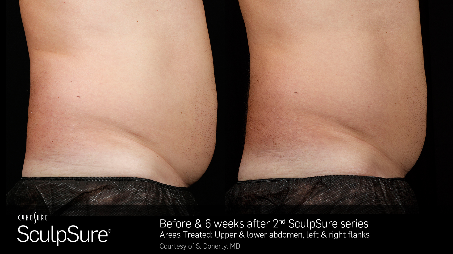 Sculpsure® Non-Invasive Body Contouring before and After #4