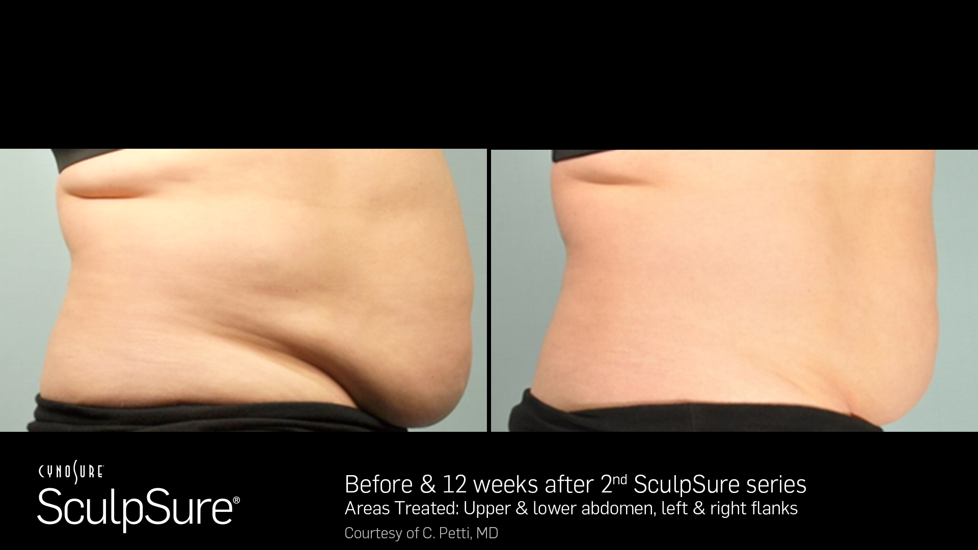 Sculpsure® Non-Invasive Body Contouring before and After #3