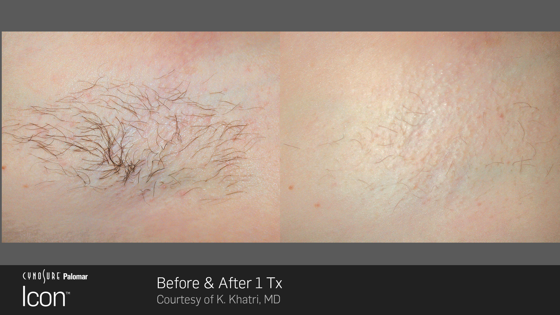 Icon™ Laser Hair Removal before and after #2