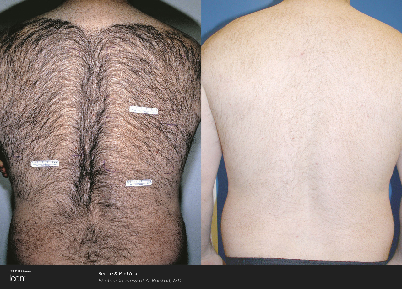 Icon™ Laser Hair Removal before and after #1