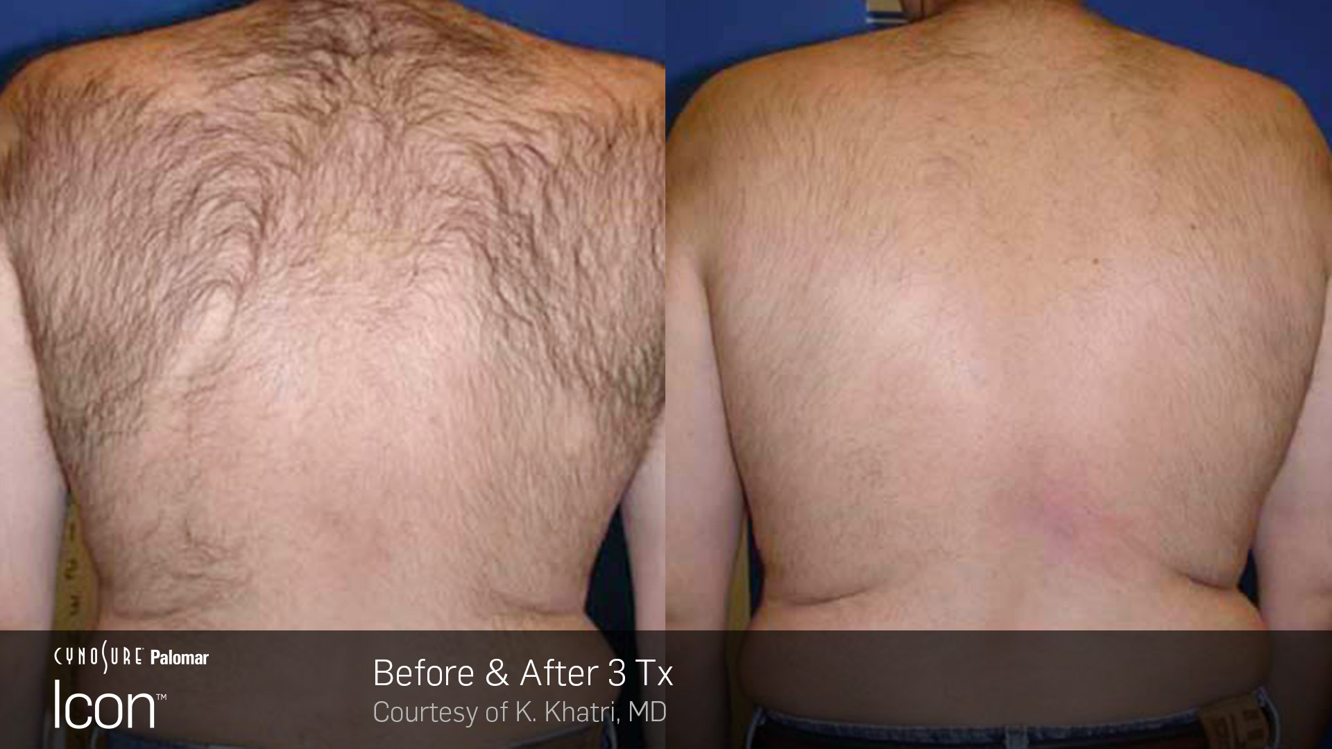 Icon™ Laser Hair Removal before and after #4