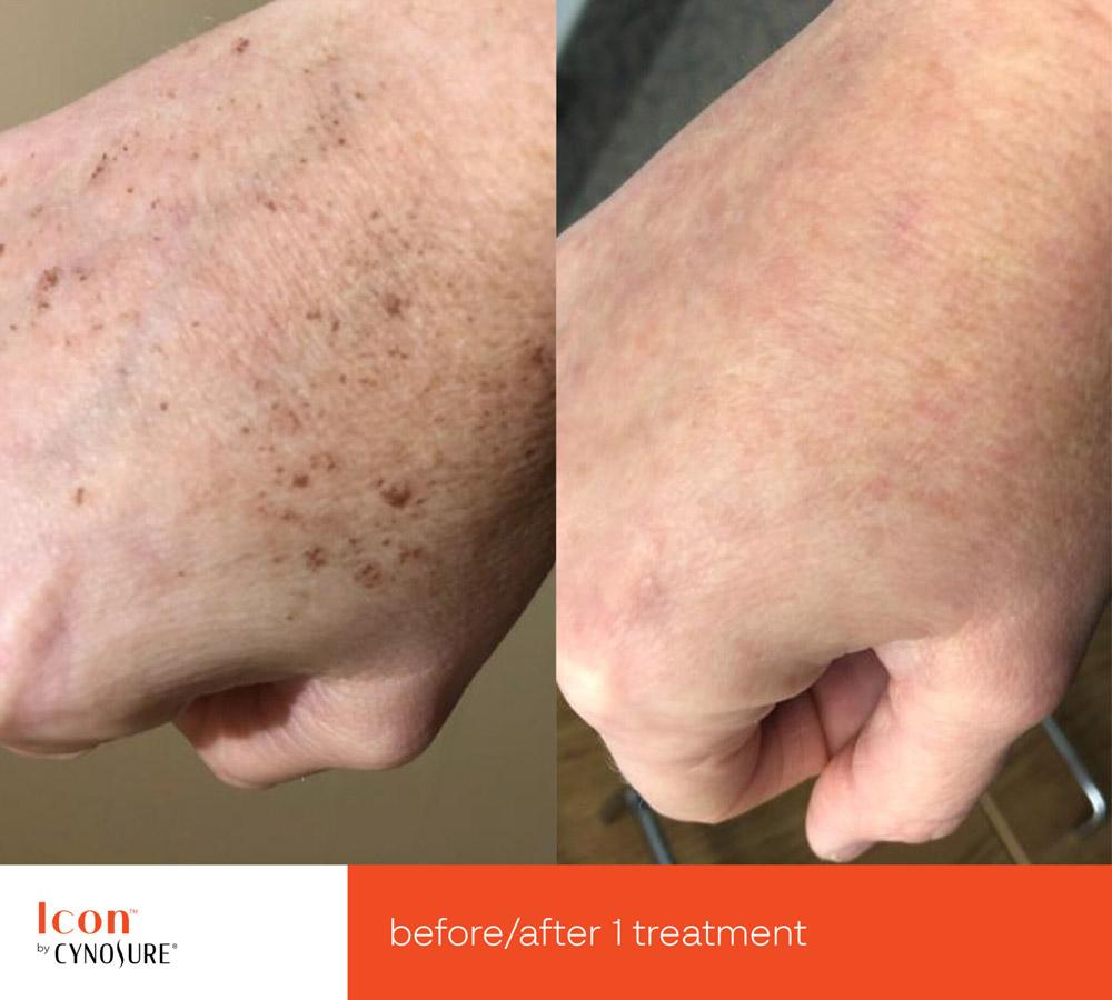 Laser Skin Rejuvenation before and after 2