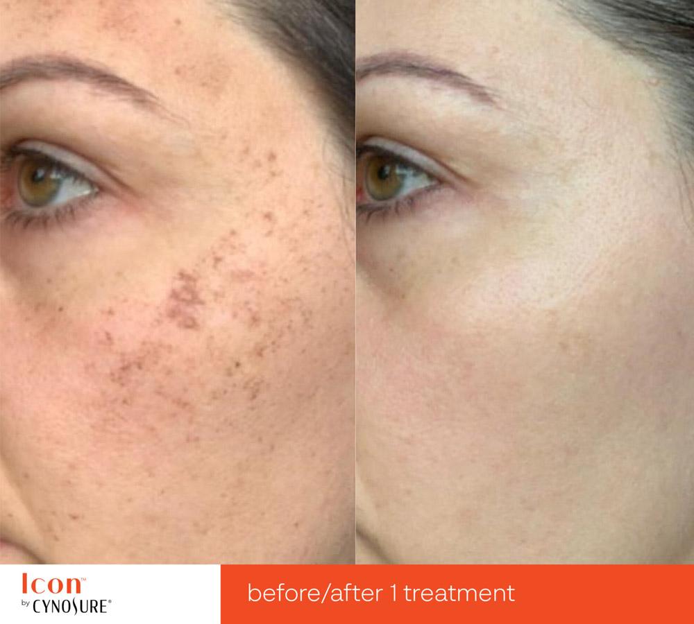 Laser Skin Rejuvenation before and after 1